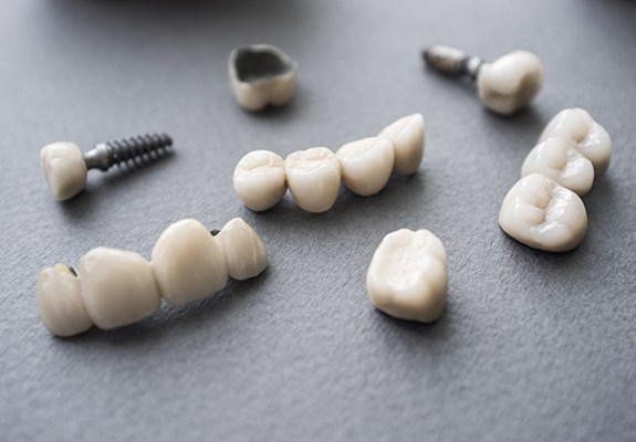 Dental implant restorations prior to placement